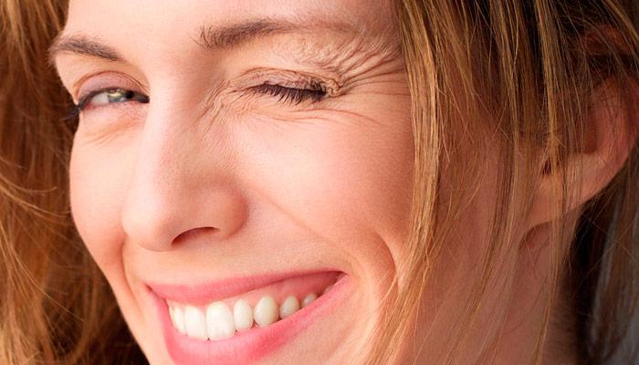 Arrugas faciales