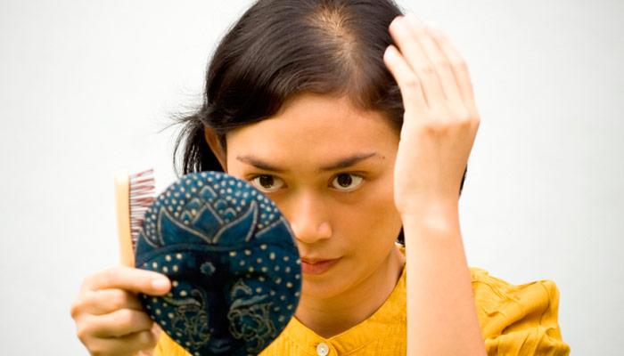 calvicie femenina