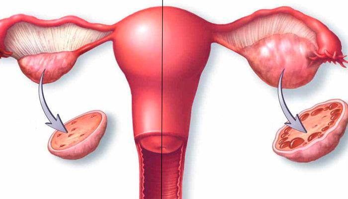 Quiste en el ovario izquierdo y embarazo