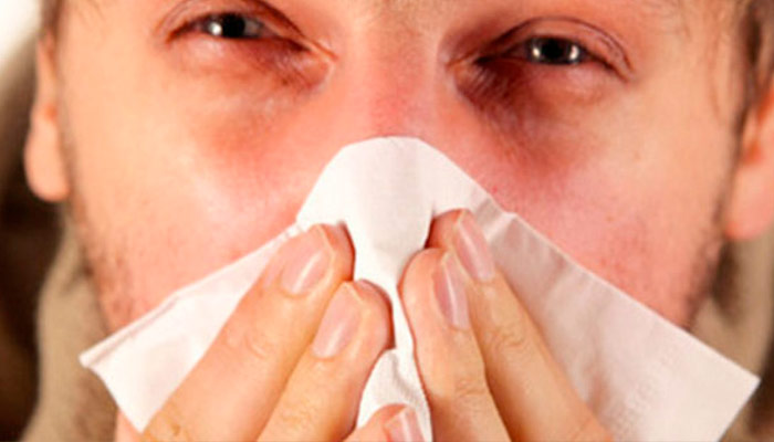 Sintomas y remedios para la rinitis alergica