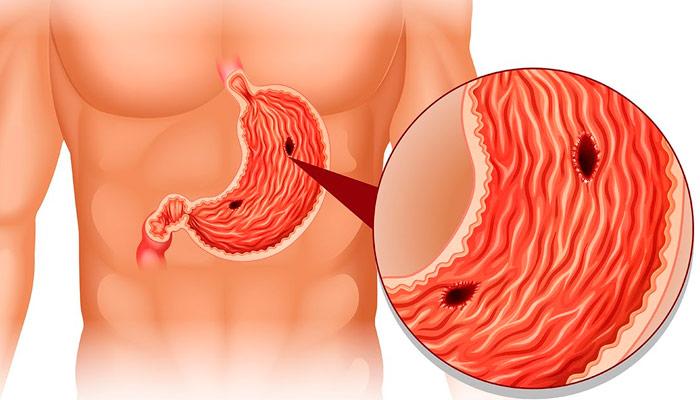 Síntomas y remedios naturales para las úlceras de estómago