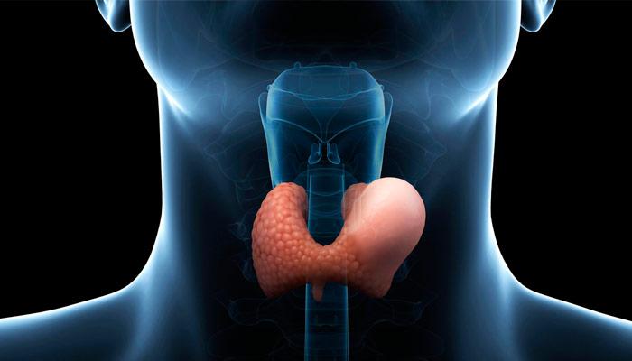 síntomas tiroiditis